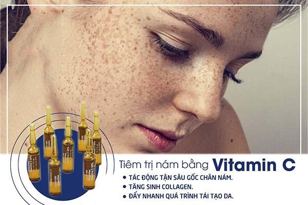 Tiêm trị nám, sạm da da bằng vitamin C