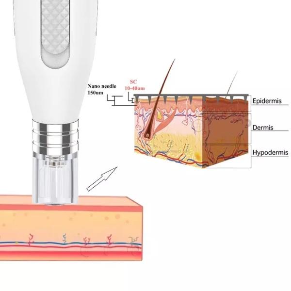 Khi chip nano nhẹ nhàng chạm vào da, nó sẽ tạo ra hàng nghìn kênh nano vô hình có thể cung cấp dinh dưỡng vào sâu hơn trong da của bạn một cách an toàn và hiệu quả, giúp tăng khả năng hấp thụ các sản phẩm chăm sóc da của bạn lên gấp 20 lần. Sử dụng PP.Pen nano tại nhà rất an toàn và không đau.